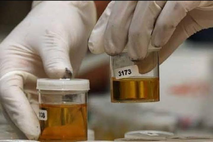 4 Warga Binaan di Sorong Dinyatakan Positif Narkoba Usai Dilakukan Tes Urine 4 IMG 20200806 WA0031
